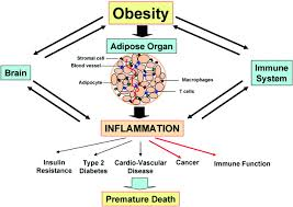 Obesity linked to an increased risk of a stress related